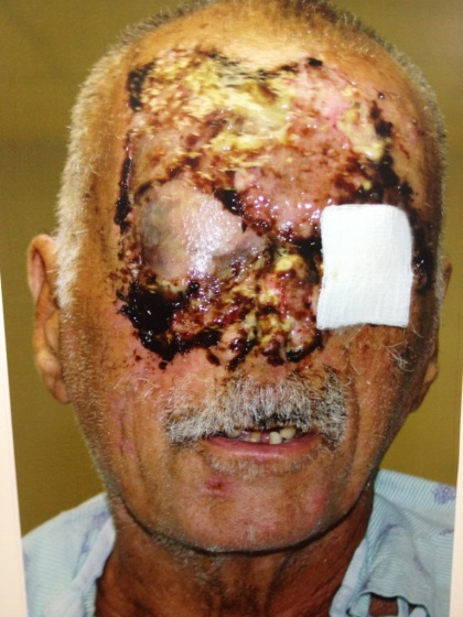 This is what the man looks like after extensive surgery done to his face. He is now blind.